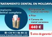 Implantes dentales por sólo 315 euros (el precio incluye también el pilar)